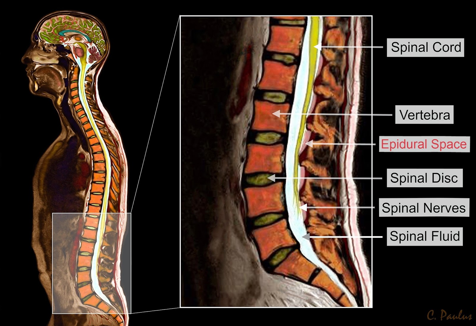 Color MRI Lumbar Spine Anatomy