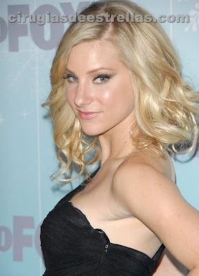 heather morris cirugia