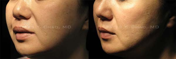 3D聚左旋乳酸雕塑整張臉, Sculptra facial recontouring by Yates Y. Chao, MD