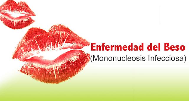 ¿Sabes lo qué es la Mononucleosis infecciosa (ENFERMEDAD DEL BESO)?