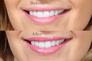 Foto Cara Mengatasi Bibir Hitam Sebelum dan Setelah Perawatan secara Alami