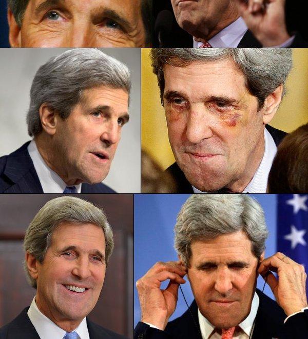 John Kerry Facelift John kerry edition: what is it