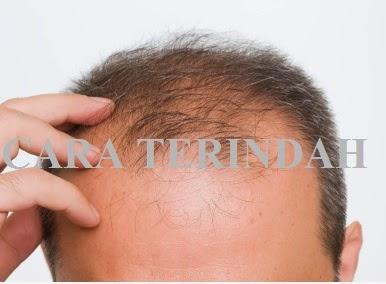 Cara Alami Menumbuhkan Rambut Botak | Tips Kecantikan