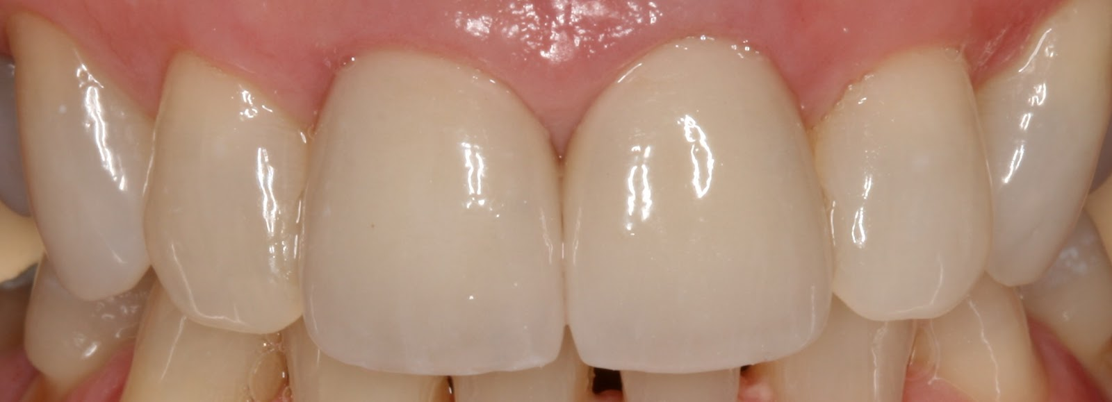 Healthy Gums Color In both color and healthUnhealthy Gums Color