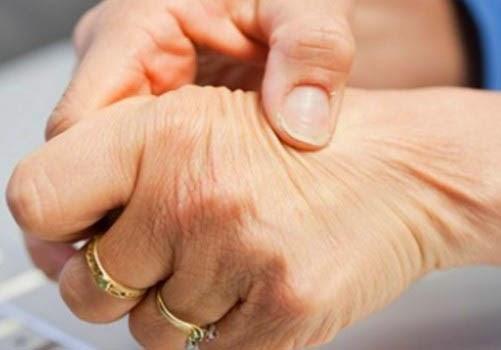 Mengethui Geala Penyakit Arthritis dan Cara Mencegahnya