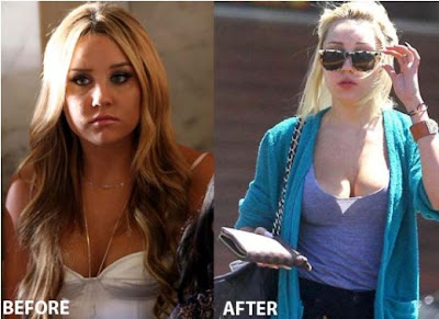 Amanda Bynes Hot Breast