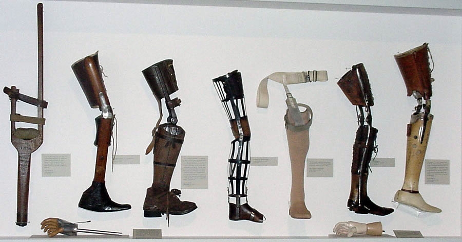 a history of prosthesis in medical surgeries The advent of total knee arthroplasty (tka) was an important milestone in the history of orthopedic surgery the development of tka began in the early 1970s when tibiofemoral condylar replacements.