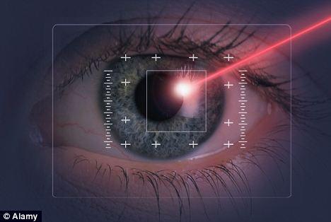 Lazer ile göz çizdirme ameliyatı