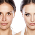 Some Makeup Tricks That Will Help You Hide Skin Imperfections