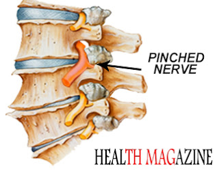 Pinched Nerve in Neck: Symptoms, Causes and Treatments