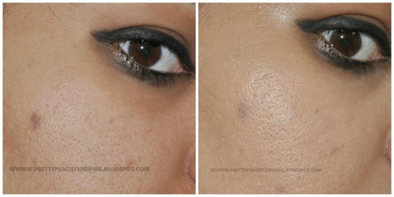 GARNIER BB CREAM-Miracle Skin Perfecter before after pic