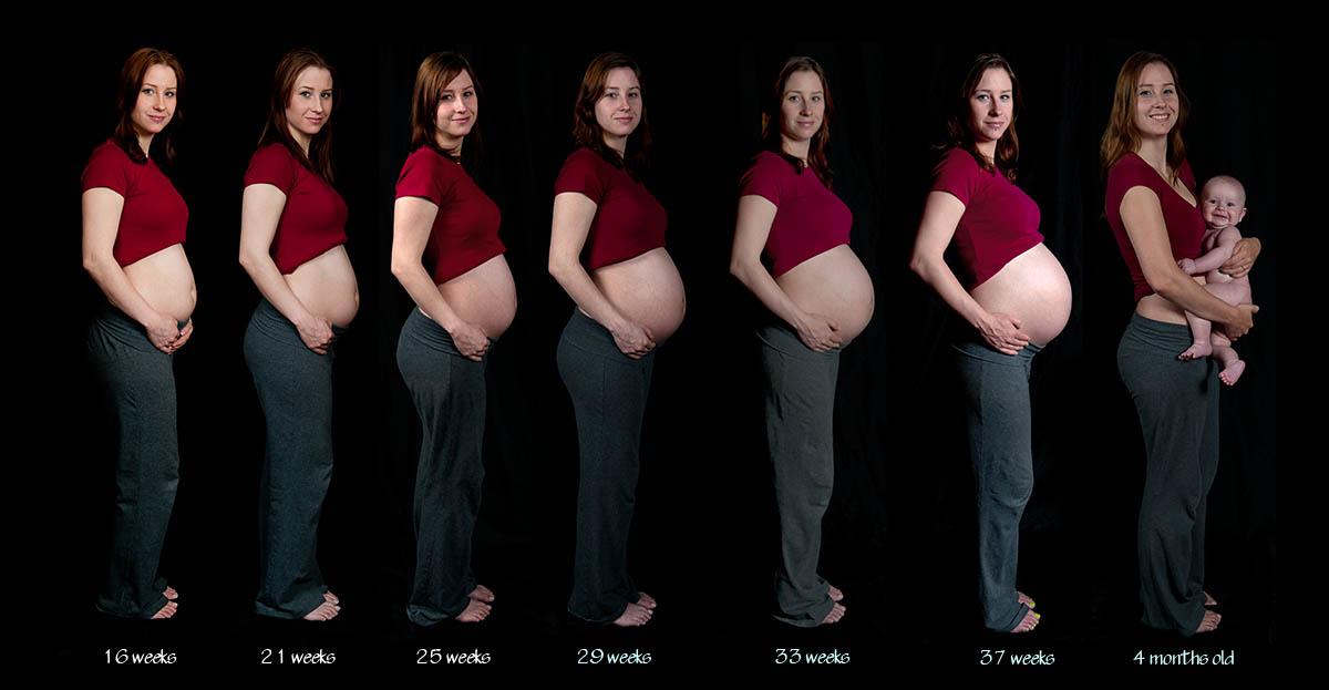 Нужно ли проходить беременным флюорографию 99