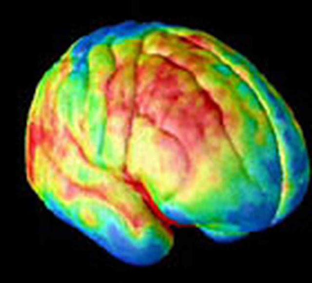 Brain Imaging5