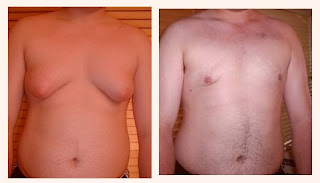 adolescent gynecomastia san francisco bay area, california