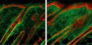 Researchers Identify A New Culprit Behind Fibrosis