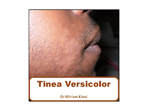 Tinea Versicolor Book