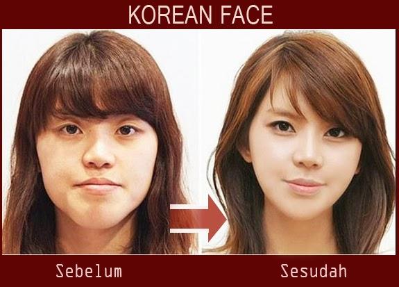 Operasi plastik paling familiar bagi gadis Korea yakni operasi ...