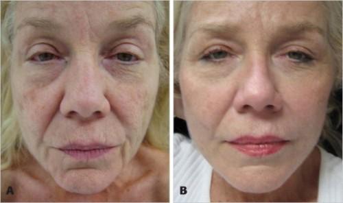 Resultado de imagem para imagens antes e depois do peeling quimico