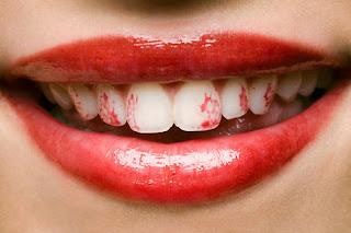 labial en los dientes