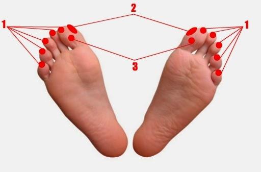 Pijat Refleksi Gangguan Menstruasi (Amenore)