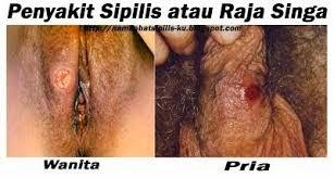 penularan penyakit sipilis