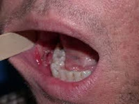 oral cancer cheek