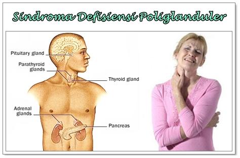 Pengobatan Herbal Sindroma Defisiensi Poliglanduler