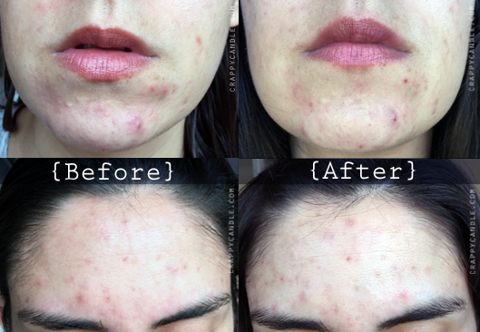 Non-Foaming Cleanser Before & After :: The Acne Experiment