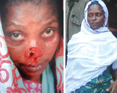 woman bites off nose lagos