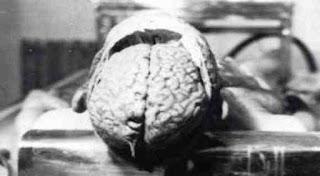 Pembedahan pada otak laki-laki diatas yang telah terinjeksi oleh parasit yang telah bermutasi