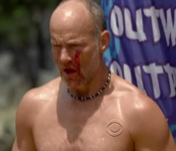 Mike SKupin bleeding