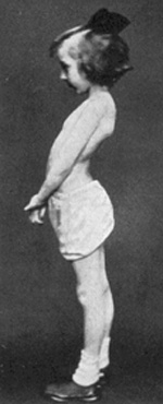 The Pilates Hundred: Posture 202: Lordosis