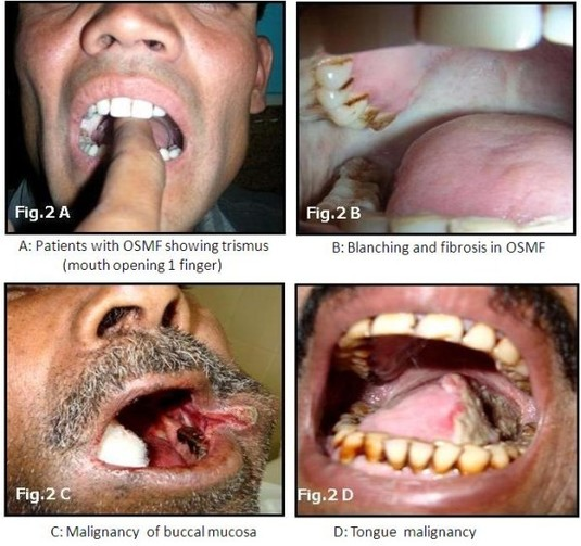 osmf thesis Management of osmf  oral submucous fibrosis is a chronic, insidious,  disabling condition of the oral mucosa that  mds thesis, university of bombay,  1968.