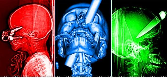 Hipernovas: 32 Radiografias Insanas Que Te Causarão Dor Só de Olhá-las (32 Imagens)