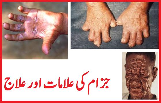 leprosy in urdu