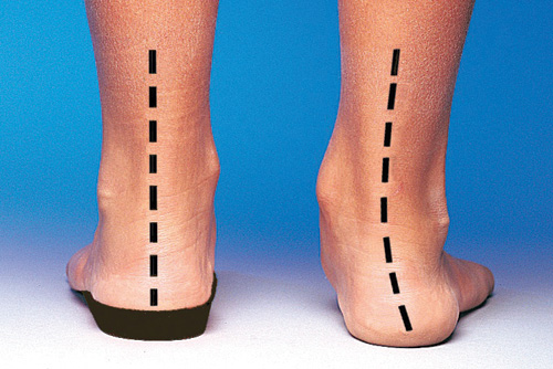 Image result for rearfoot pronation