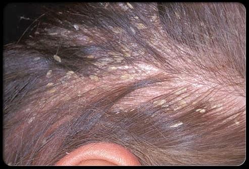 Les huiles volatiles dans la sortie des cheveux les rappels