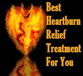 Best Heartburn Relief Treatment For You