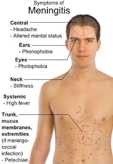 Gejala Penyakit Meningitis dan Penyebabnya