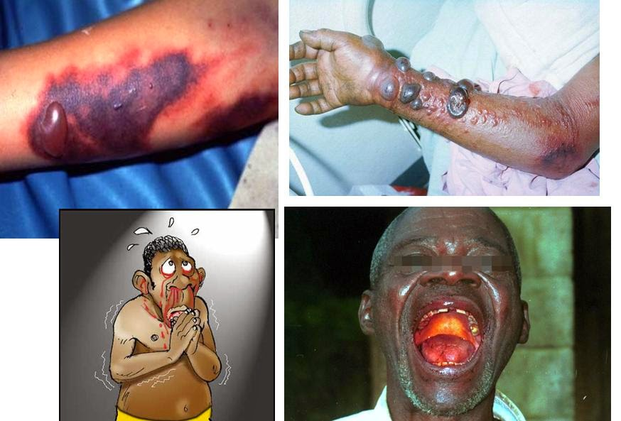 Biểu hiện triệu chứng Bệnh do Virus Ebola :