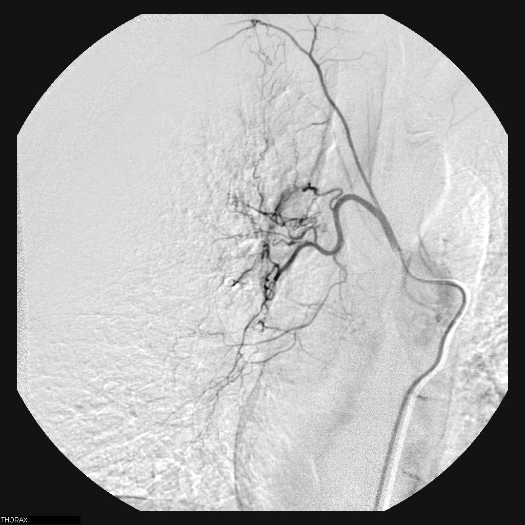 Haemoptysis Bronchial Artery Embolization Interventional