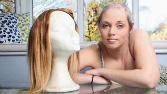 tricotilomania - mulher fica careca - Tricotilomania: Entendendo mais sobre o assunto