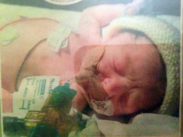 Το κοριτσάκι που γεννήθηκε χωρίς αίμα στις φλέβες έκλεισε τα τέσσερα