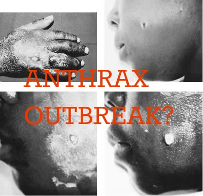 american anthrax outbreak Severe acute respiratory syndrome (sars) - multi-country outbreak - update 31  5 april  2001 - anthrax in the united states - update 15 5 november 2001.
