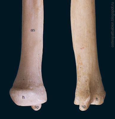 Шиловидный отросток локтевой кости дистальный эпифиз, или головка (caput ulnae)
