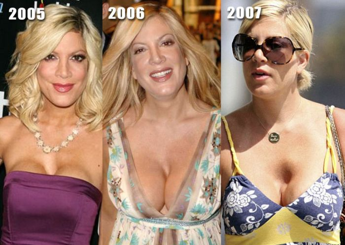Top Celebrities With Breast Implants Before After