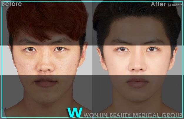 the_best_korean_rhinoplasty_wonjin_cosmetic_surgery