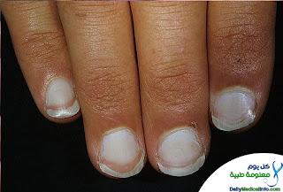 بالصور اظافرك عنوان صحتك Nails+(1)