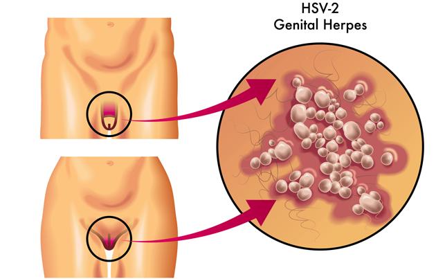 ஹெர்பிஸ் – Herpes  என்ற பால்வினை சரும நோய் சிகிச்சை