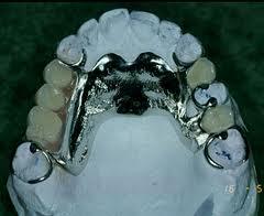 protesis parcial metal cromo cobalto
